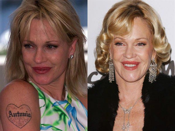 Melanie Griffith Before And After Plastic Surgery Showed